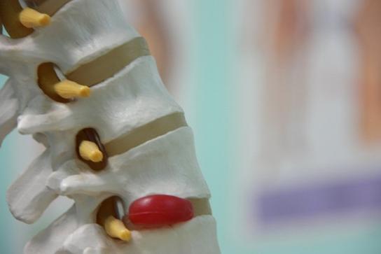 Межпозвоночная грыжа позвоночника: все начинается с остеохондроза