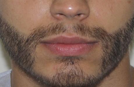 Современные мужчины увлеклись трансплантацией усов