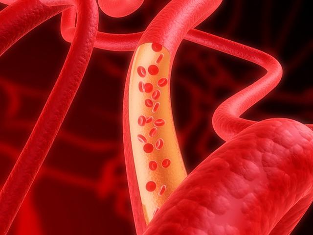 почистить сосуды от холестерина народными средствами
