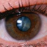 Катаракта - главная причина слепоты
