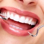 Оральный секс, алкоголь и пирсинг во рту угрожают здоровью зубов