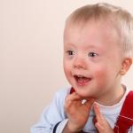 Отдельные симптомы синдрома Дауна можно вылечить: медики