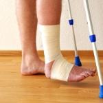 Как быстро вылечить перелом
