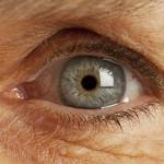 Болезнь Альцгеймера: диагностика по глазам