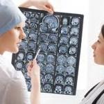 Компания Навамедик выпускает новый генерик для лечения эпилепсии