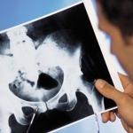 В Европе одобрили препарат Ксофиго для лечения рака предстательной железы