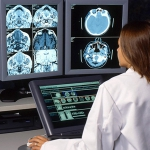 Стресс: что происходит с мозгом