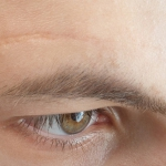 В США одобрен гидрогель Микроцин для удаления шрамов