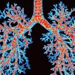 Что необходимо знать о бронхиальной астме