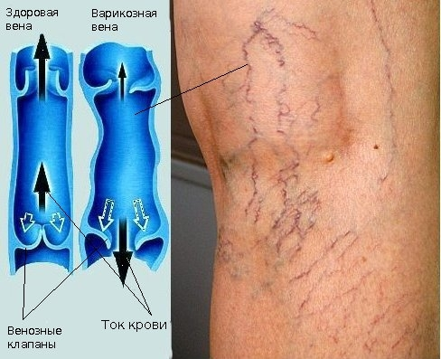 Лекарство от вен на ногах детралекс
