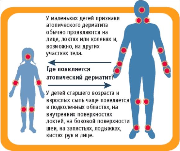 Контактная экзема контактный дерматит