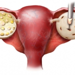 Синдром поликистозного яичника - скрытая угроза
