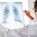 Что такое эмфизема легких
