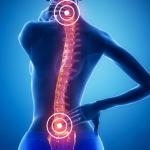Лечение грыжи межпозвоночного диска поясничного отдела за рубежом