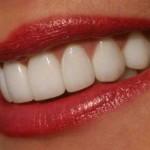 Как отбелить зубы дома, не навредя им