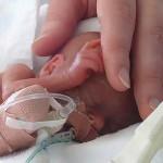Учимся правильно кормить недоношенного малыша