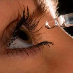 Конъюнктивит: лечение и симптомы