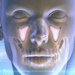 Гайморит: опасное воспаление пазух носа
