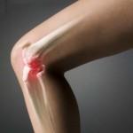 Как деформируются суставы при артрозе и артрите
