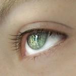 Ожоги и царапины роговицы: симптомы и лечение
