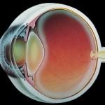 Кого выбирает катаракта
