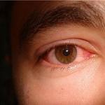 Синдром красных глаз: что может означать