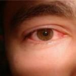 Краснота глаз может быть опасной