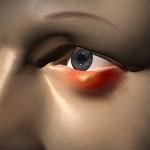Глазной ячмень: как лечить