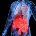 Язва: диагностика и самодиагностика болезни