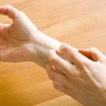 Псориаз: проявление, лечение и профилактика