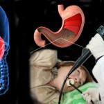 Острый гастрит: симптомы, виды, диета