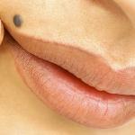 Родимое пятно: косметический дефект или опасный симптом