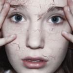 Эпидермомикоз кожи: формы, симптомы