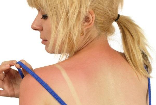 Как вылечить солнечный ожог