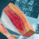 Гематома: причины, виды, симптомы, лечение