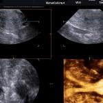 Что такое аплазия матки и влагалища
