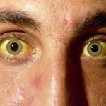 Берегитесь гепатита