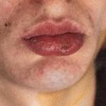 Сифилис: причины появления, симптомы