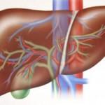 Вероятные осложнения цирроза печени