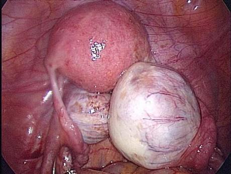 Эндометриоидные кисты яичника
