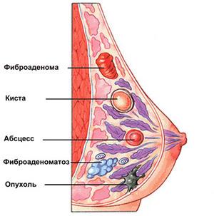 Факторами риска патологий молочной железы