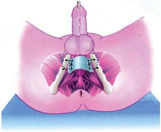 Хирургическое лечение недержания мочи