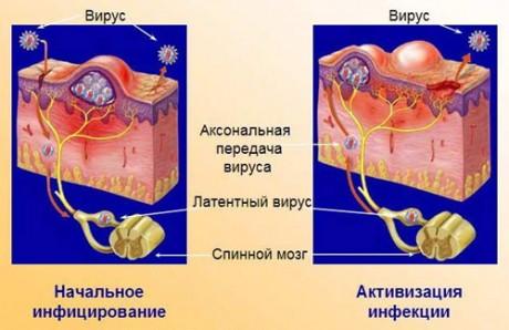 Механизм развития генитального герпеса