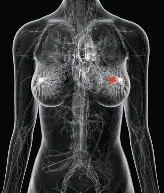 Каковы признаки рака груди