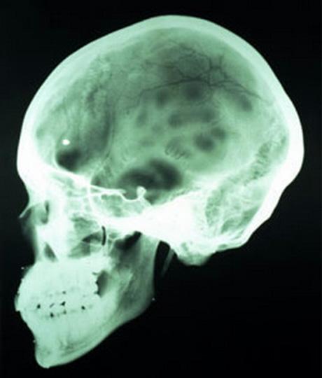 Рентген костей черепа при сотрясении головного мозга