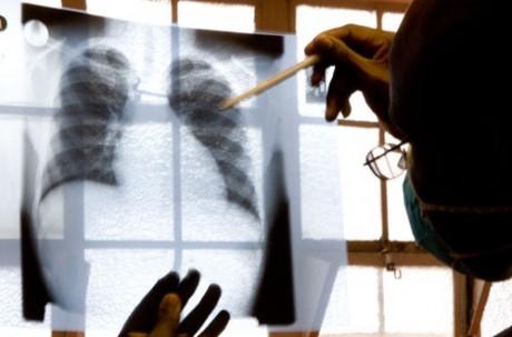 Что важно знать о лечении туберкулеза