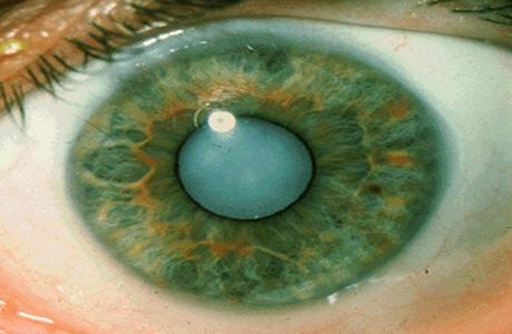 Глаз поразила катаракта