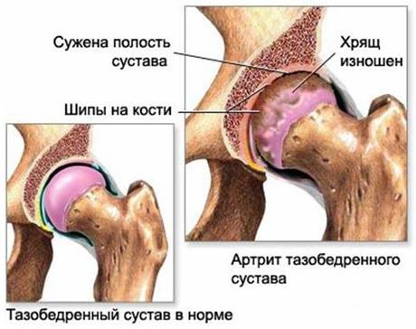 Артрит - это общее название заболеваний суставов