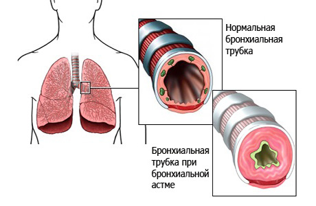 Астма проявляется множеством разных симптомов
