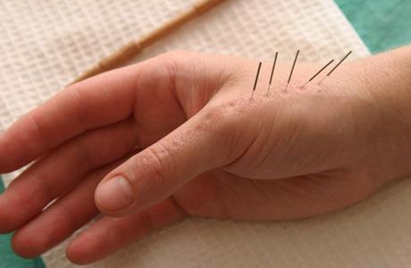 Что делать при полиневропатии